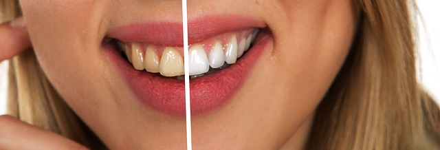 Teeth Whitening: Frequently Asked Questions