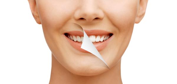 Preguntas Frecuentes del Blanqueamiento Dental