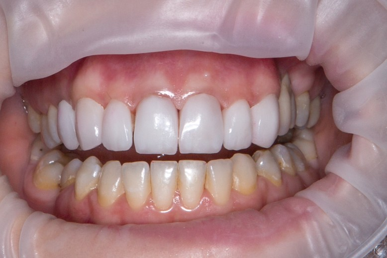 Reasons Why You Should go for Teeth Whitening